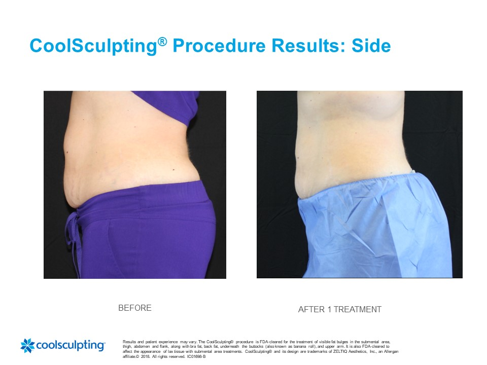 Coolsculpting Before & After Tina Side